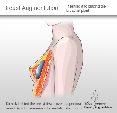 Breast Augmentation Inserting and placing the breast implant subglandular placement