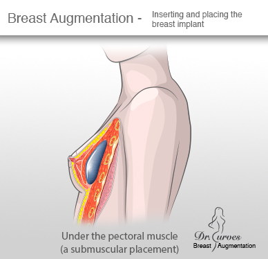 Breast Augmentation Inserting and placing the breast implant