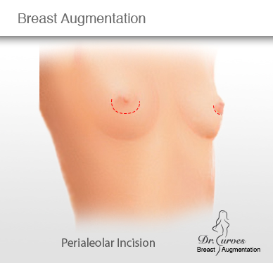 Breast Augmentation Periareolar Incision