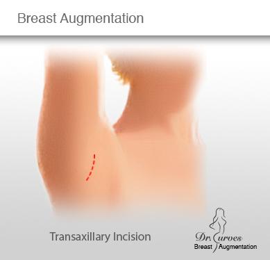 Breast Augmentation Transaxillary Incision