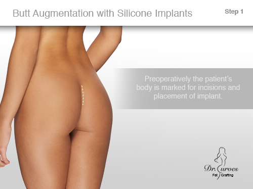 Butt Augmentation with Silicone Implants