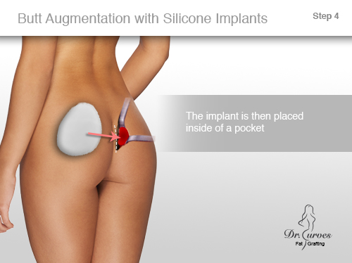 Butt Augmentation with Silicone Implants 4,0