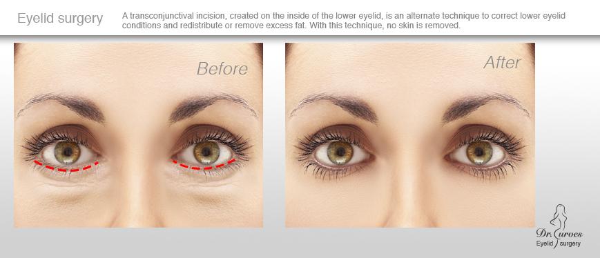 Eyelid surgery(1)