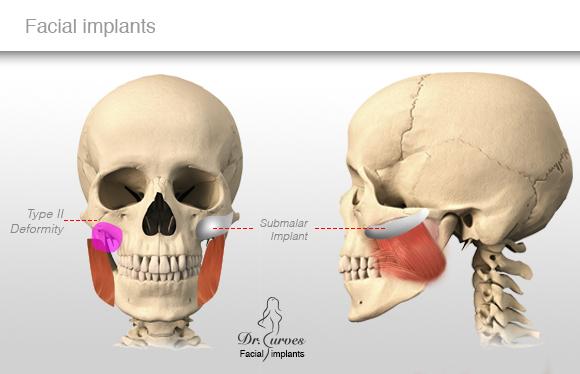 Facial implants 1