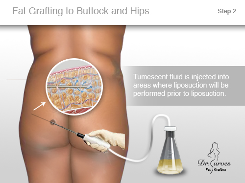 Fat Grafting to Buttock and Hips 2.1