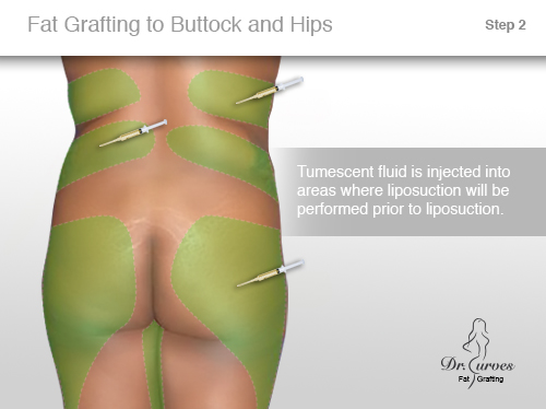 Fat Grafting to Buttock and Hips 2