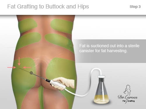 Fat Grafting to Buttock and Hips 3