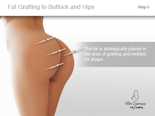 Fat Grafting to Buttock and Hips 5