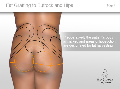 Fat Grafting to Buttock and Hips