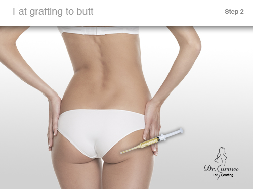 Fat grafting to butt 2