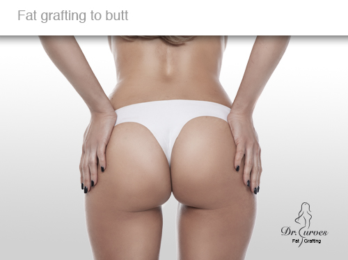 Fat grafting to butt 3