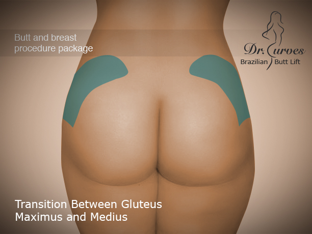 Transition Between Gluteus Maximus and Medius