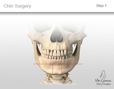 chin surgery 1