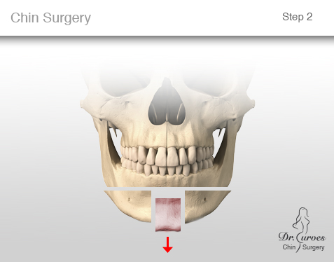 chin surgery 2