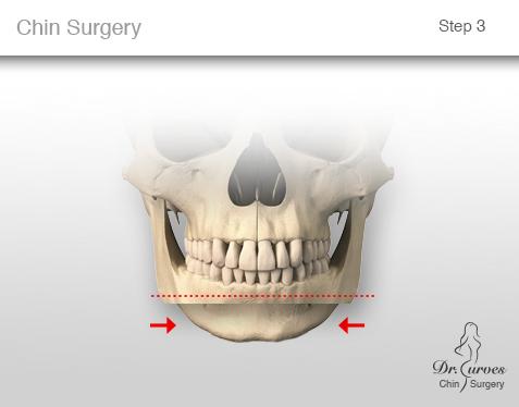 chin surgery 3