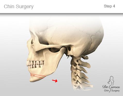chin surgery 4