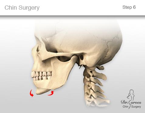 chin surgery 6