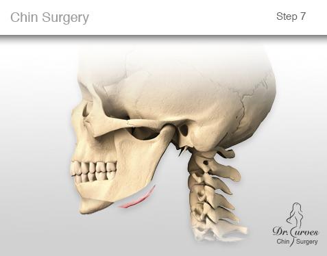 chin surgery 7