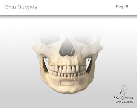 chin surgery 8