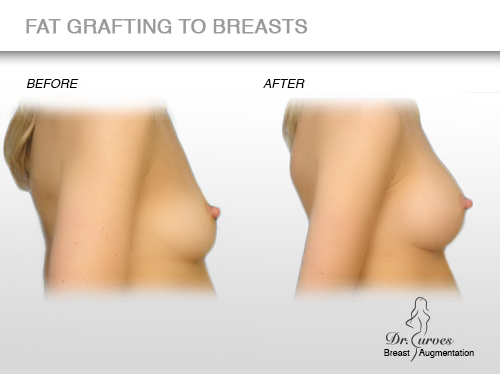 fat grafting to breasts 4