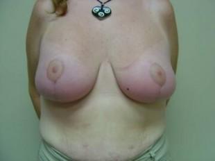 After Image Patient 3