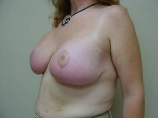 After Image Patient 2