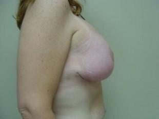 After Image Patient 1